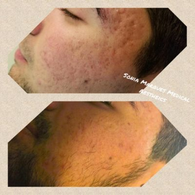 Microneedling Toronto before after